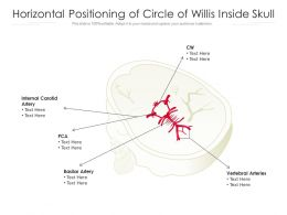 Horizontal Positioning Of Circle Of Willis Inside Skull
