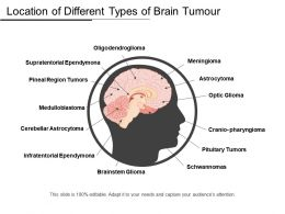 Location Of Different Types Of Brain Tumor