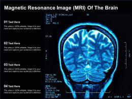 Magnetic Resonance Image MRI Of The Brain