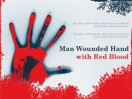 Man Wounded Hand With Red Blood