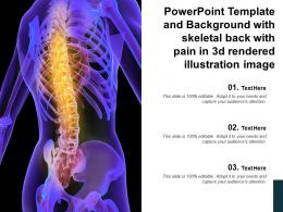 Powerpoint Template And Background With Skeletal Back With Pain In 3d Rendered Illustration Image