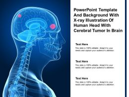Powerpoint Template And Background With X Ray Illustration Of Human Head With Cerebral Tumor In Brain