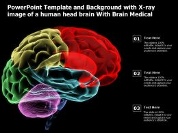 Powerpoint Template And Background With X Ray Image Of A Human Head Brain With Brain Medical