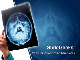 Xray Medical PowerPoint Template 0610