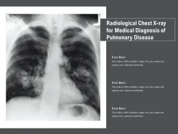 Radiological Chest X Ray For Medical Diagnosis Of Pulmonary Disease