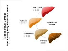 Stages Of Liver Damage From Healthy Fatty Fibrosis To Cirrhosis