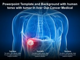 Template And Background With Human Torso With Tumor In Liver Our Cancer Medical