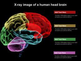 X Ray Image Of A Human Head Brain