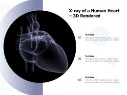 X Ray Of A Human Heart 3d Rendered