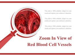 Zoom In View Of Red Blood Cell Vessels