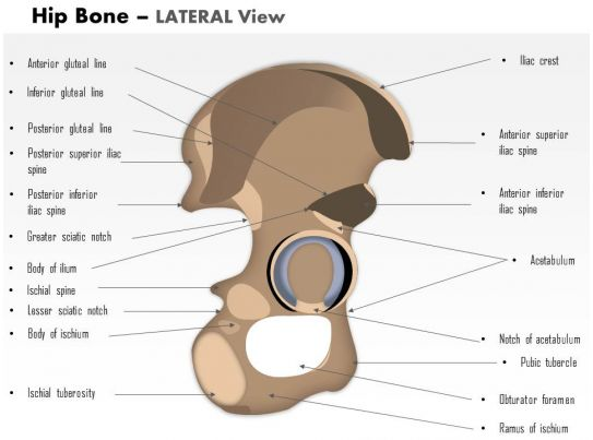 0514 Hip Bone Lateral View Medical Images For Powerpoint