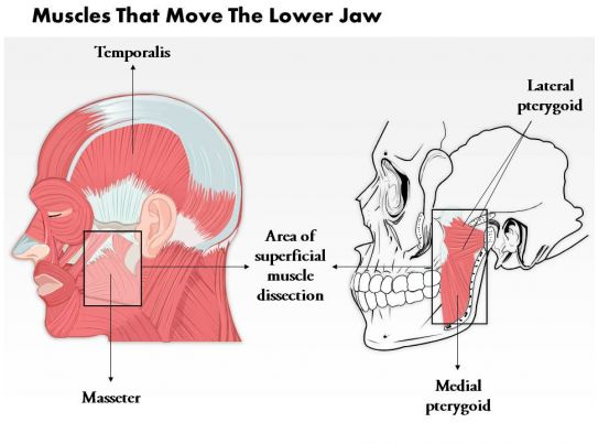 Professional Management Presentation Showing 0514 Muscle That Move The Lower Jaw Medical Images