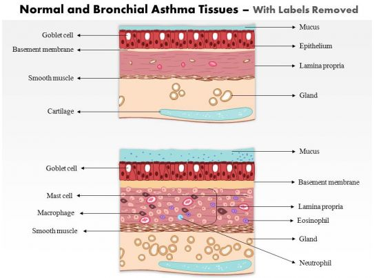 0514 Normal And Bronchial Asthma Tissues Medical Images