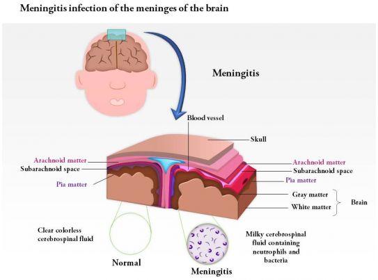 meninges of the brain pdf