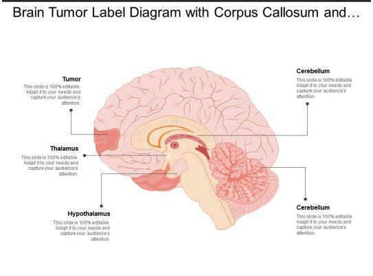 corpus callosum diagram wiring diagrams control Corpus Callosum Lesion corpus callosum diagram data wiring diagram schematic hippo campus brain tumor label diagram with corpus callosum