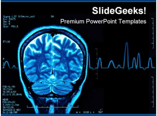 Brain Tumor Science Powerpoint Template 0610 | Presentation