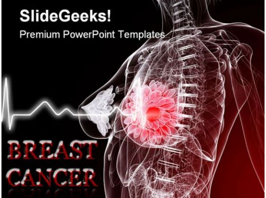 Breast cancer medical powerpoint templates and powerpoint for Breast cancer powerpoint presentation templates