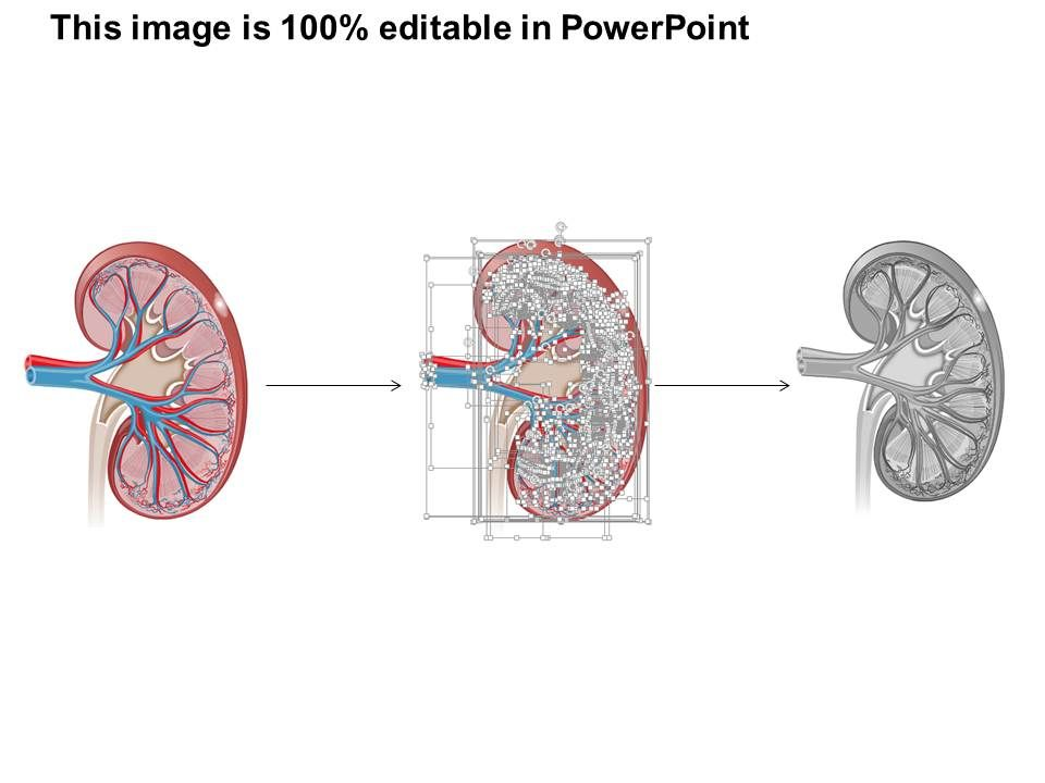 0514 Anatomy Of Kidney Medical Images For Powerpoint