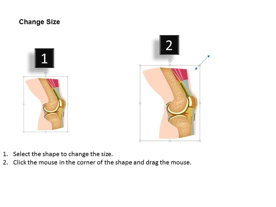 0514 anatomy of knee joint medical images for powerpoint Slide11