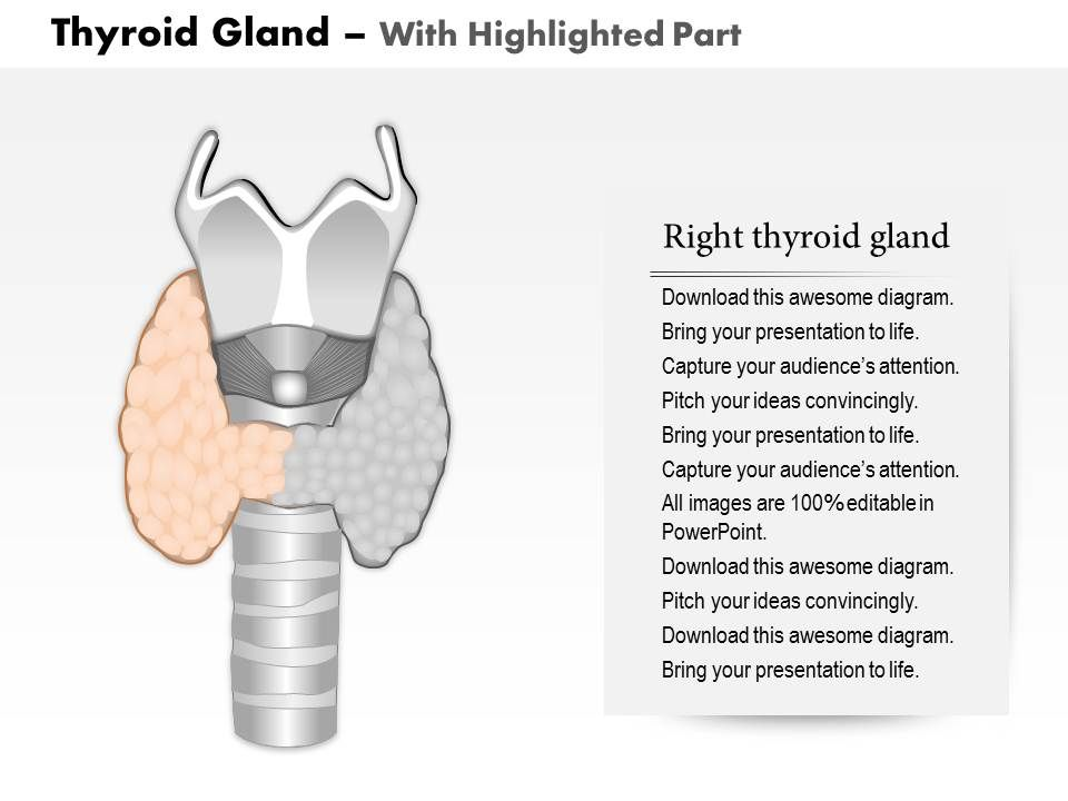 0514 thyroid gland medical images for powerpoint | presentation, Powerpoint templates