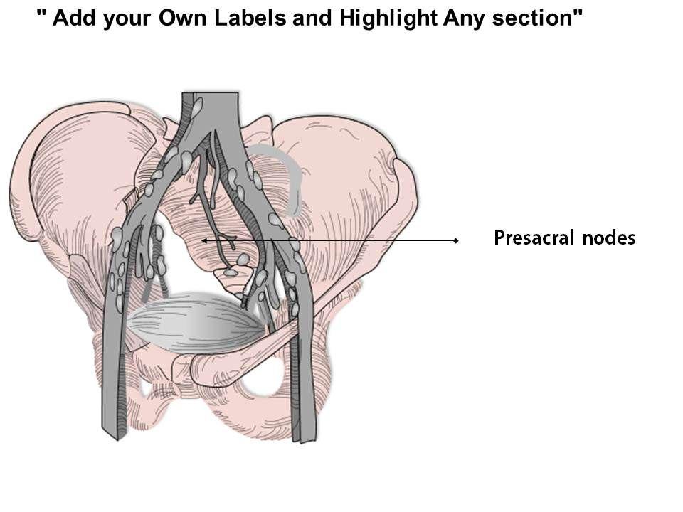 0714 Iliac Nodes Medical Images For Powerpoint Slide06