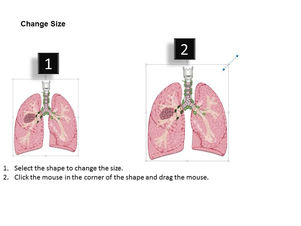 0714 Mediastinal Nodes Medical Images For Powerpoint Ppt Images