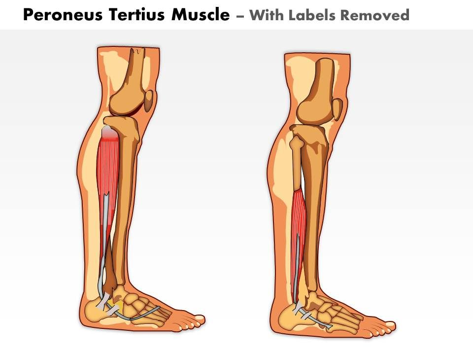 0714 Peroneus Tertius Muscle Medical Images For Powerpoint Slide02