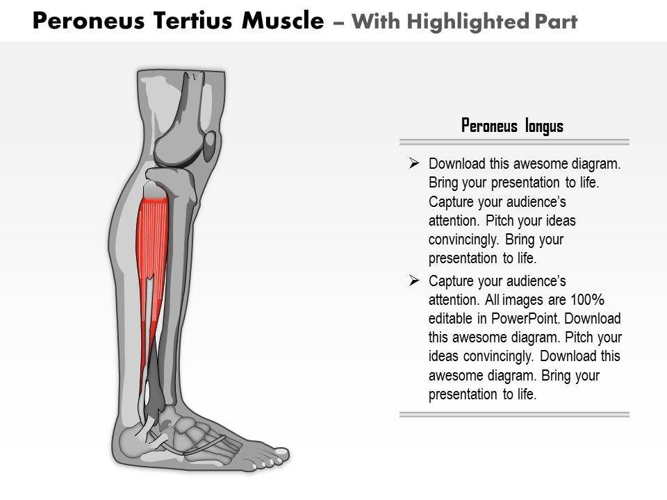 0714 Peroneus Tertius Muscle Medical Images For Powerpoint Slide03