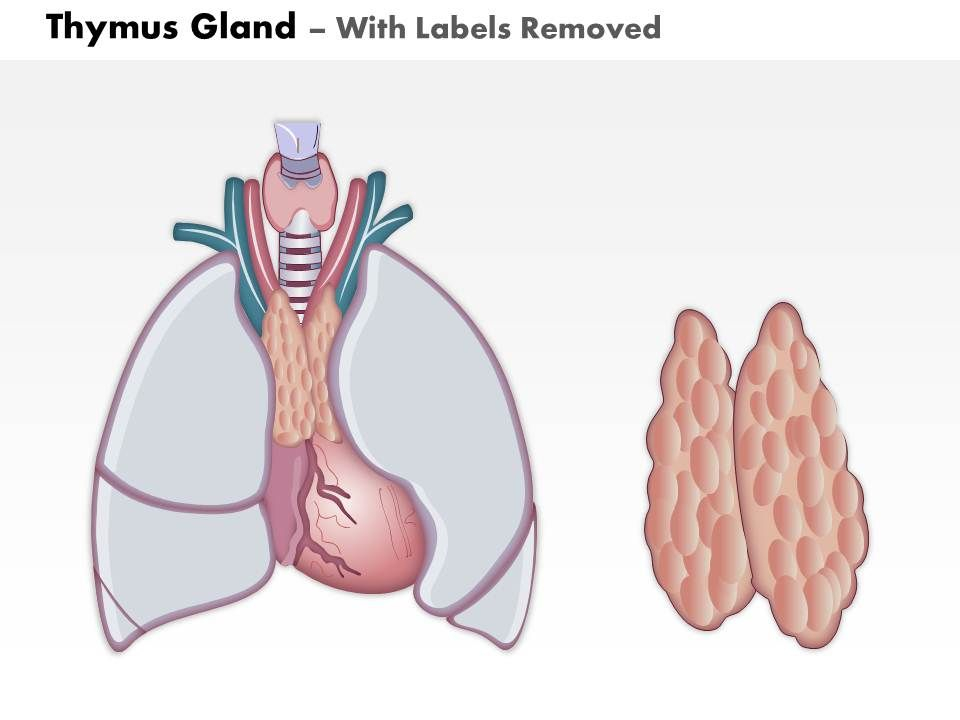 0714 thymus gland medical images for powerpoint Slide02