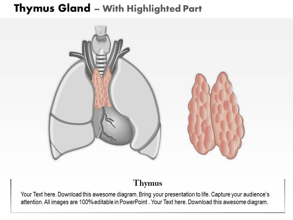 0714 Thymus Gland Medical Images For Powerpoint Slide04