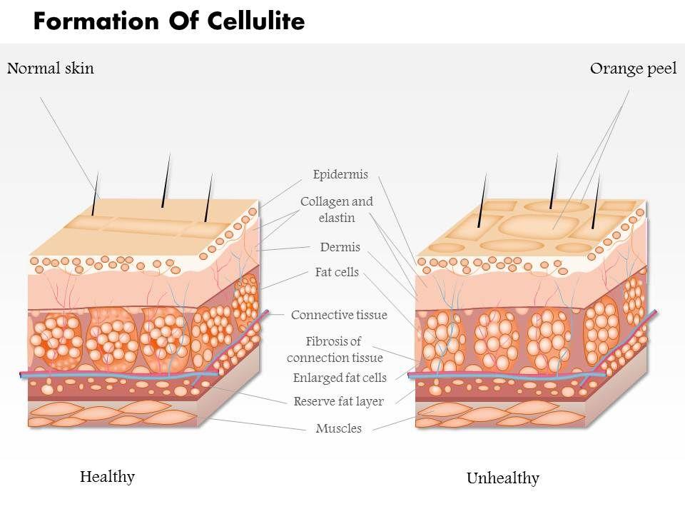 0814 formation of cellulite medical images for powerpoint 0814formationofcellulitemedicalimagesforpowerpointslide01 0814formationofcellulitemedicalimagesforpowerpointslide02 toneelgroepblik Gallery