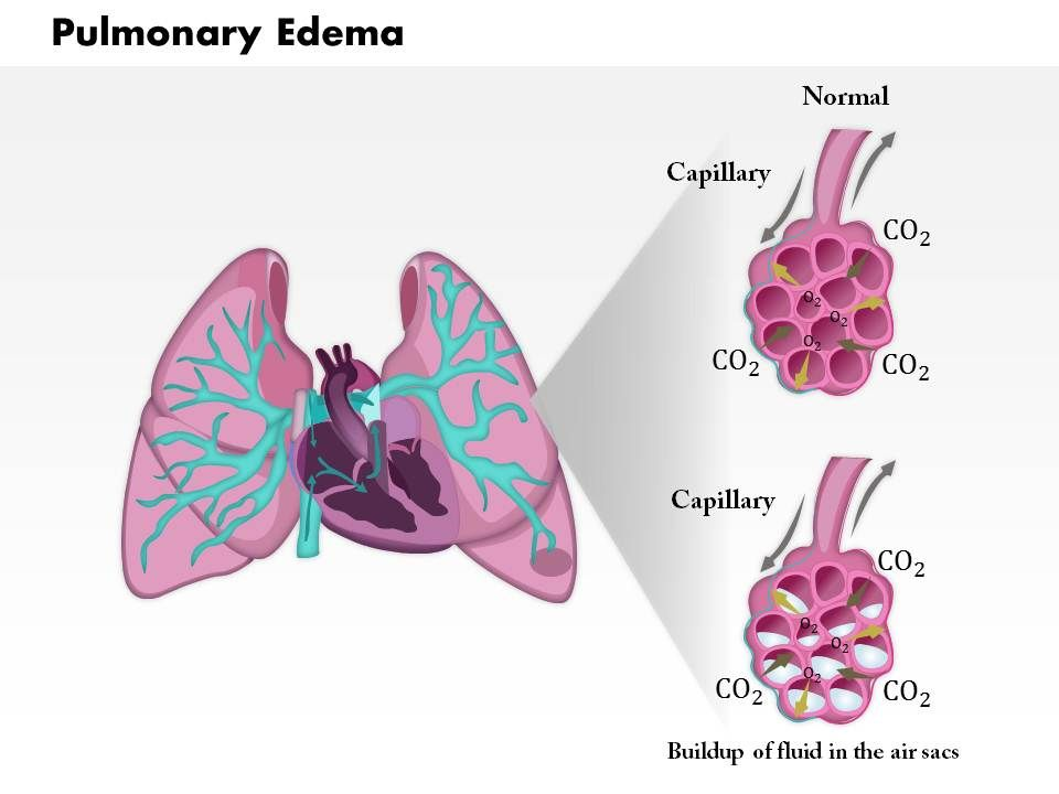 0814 pulmonary edema medical images for powerpoint | powerpoint, Presentation templates