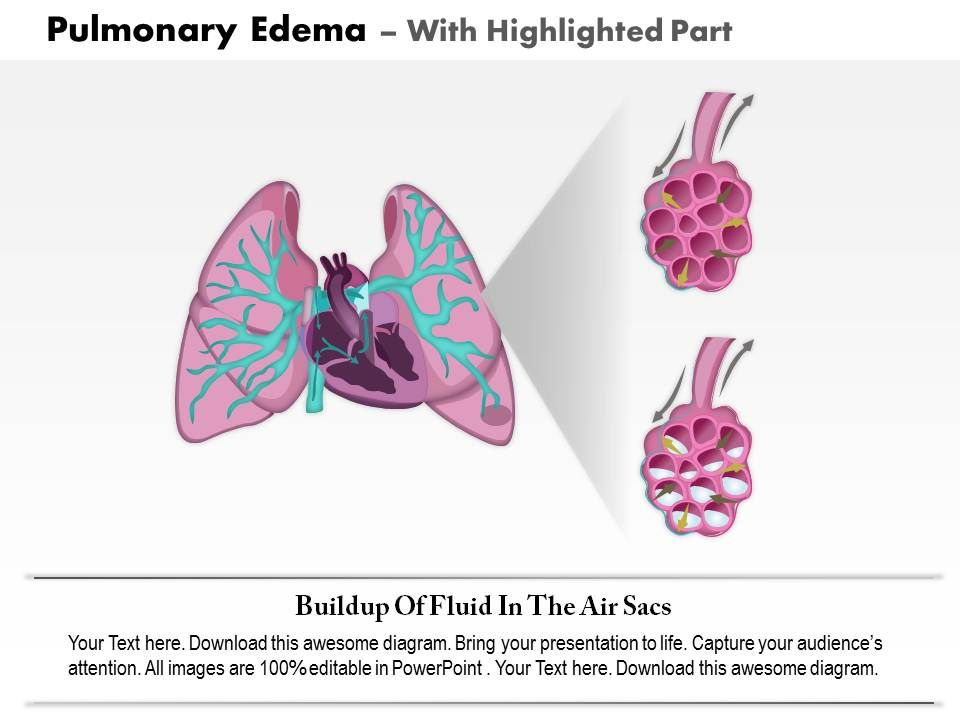 0814 Pulmonary Edema Medical Images For Powerpoint