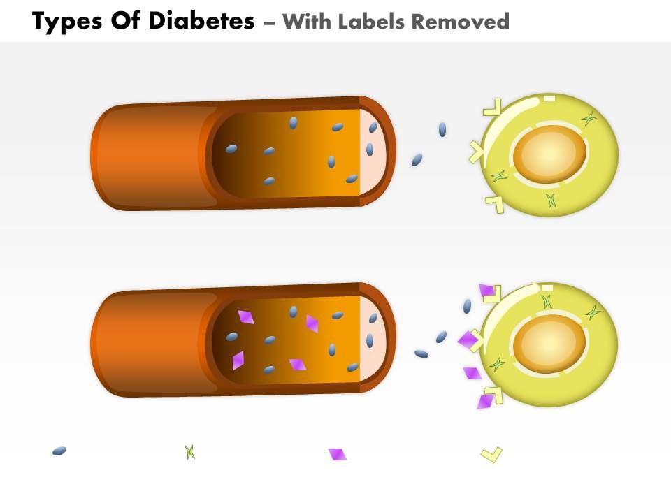0814 types of diabetes medical images for powerpoint | powerpoint, Modern powerpoint