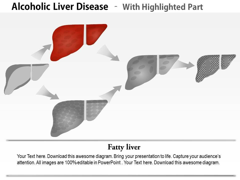 0914 alcoholic liver disease medical images for powerpoint 0914alcoholicliverdiseasemedicalimagesforpowerpointslide03 0914alcoholicliverdiseasemedicalimagesforpowerpointslide04 ccuart Image collections