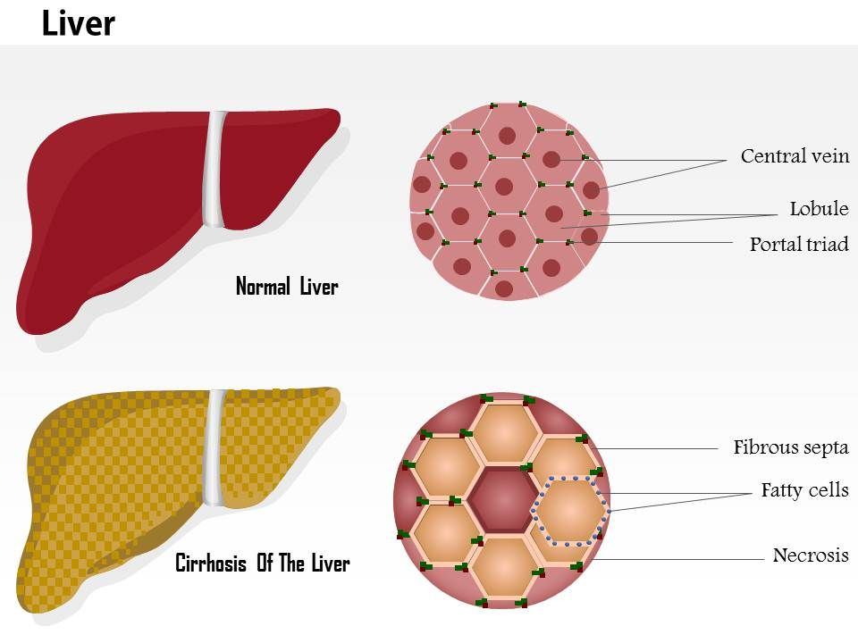 0914 cirrhosis of the liver and normal liver structure medical 0914cirrhosisoftheliverandnormalliverstructuremedicalimagesforpowerpointslide01 ccuart Images