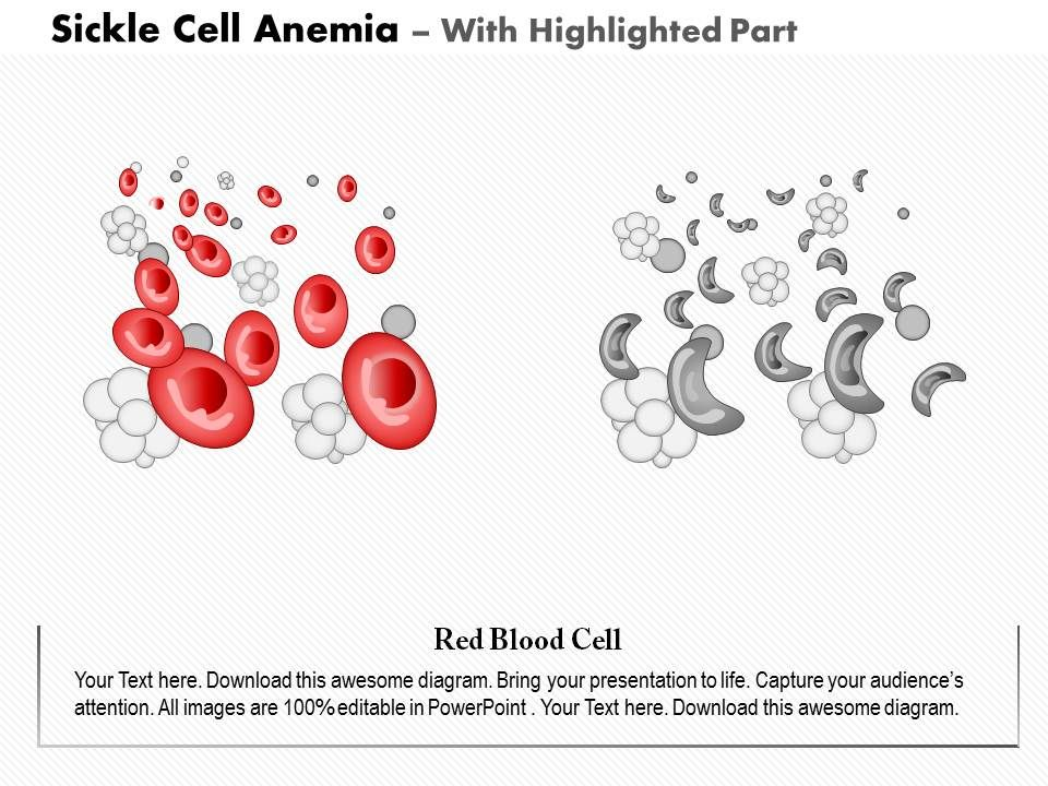 0914 Sickle Cell Anemia Medical Images For Powerpoint Presentation