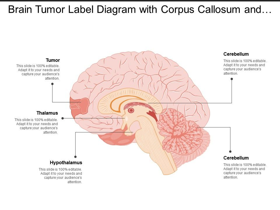 brain tumor label diagram with corpus callosum and hypothalamus  corpus callosum diagram #14