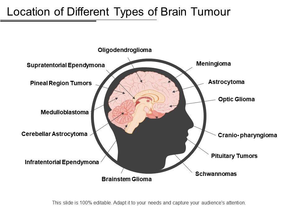 location_of_different_types_of_brain_tumor_Slide01