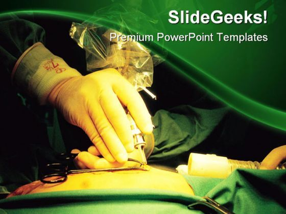 Surgeon Hand Medical PowerPoint Templates And PowerPoint Backgrounds 0211  Presentation Themes and Graphics Slide01
