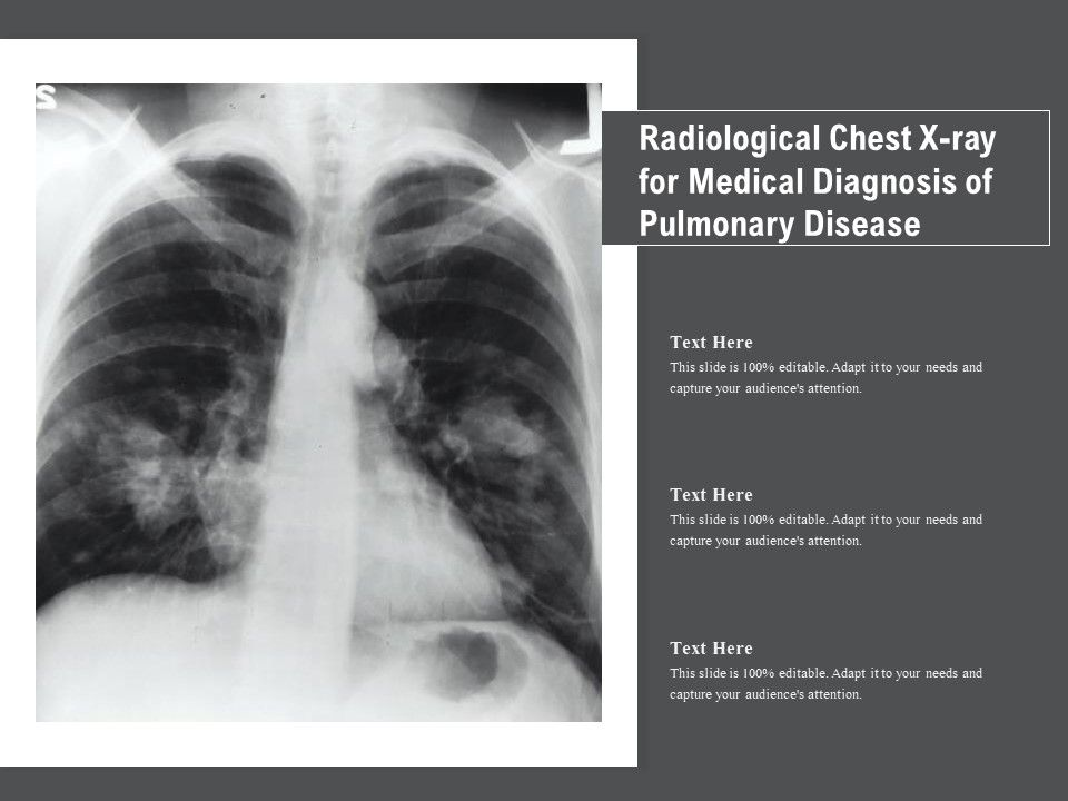 Radiological Chest X Ray For Medical Diagnosis Of Pulmonary Disease Presentation Graphics Presentation Powerpoint Example Slide Templates